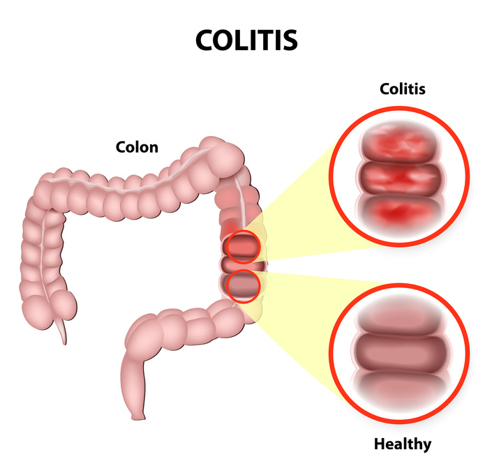 Manage your Ulcerative Colitis Naturally!!