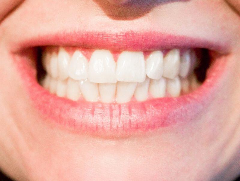 Sensitive Teeth: 5 Treatments A Dentist Might Recommend