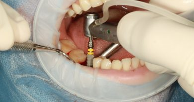 Questions to Ask From Your Dentist About Dental Implants
